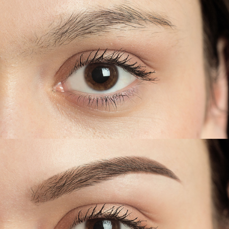 Eyebrow Reconstruction