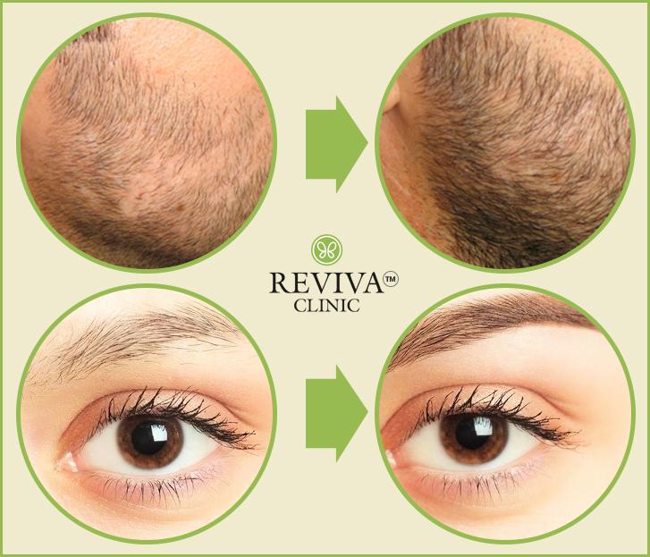 Hair Transplant in Special Sites – Eyebrows & Beard Hair Transplants