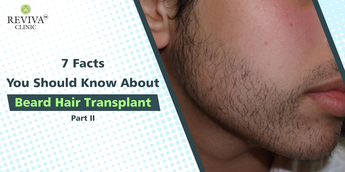 7 Facts You Should Know About Beard Hair Transplant – Part II