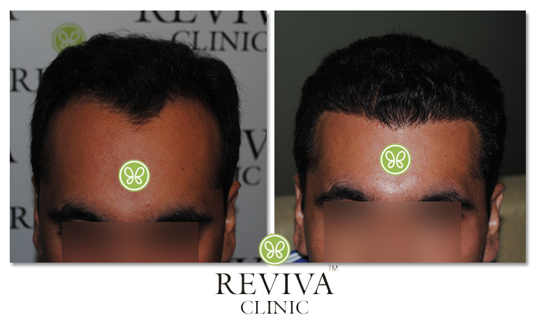 Platelet Rich Plasma (PRP) Therapy for Natural Hair Restoration