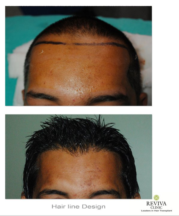 Why Should You Try Hair Transplant