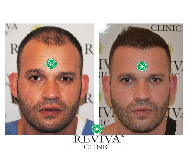 Hair Transplant Post Operative Instructions