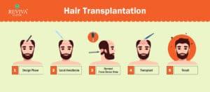 Fue Hair transplant Procedure -2020