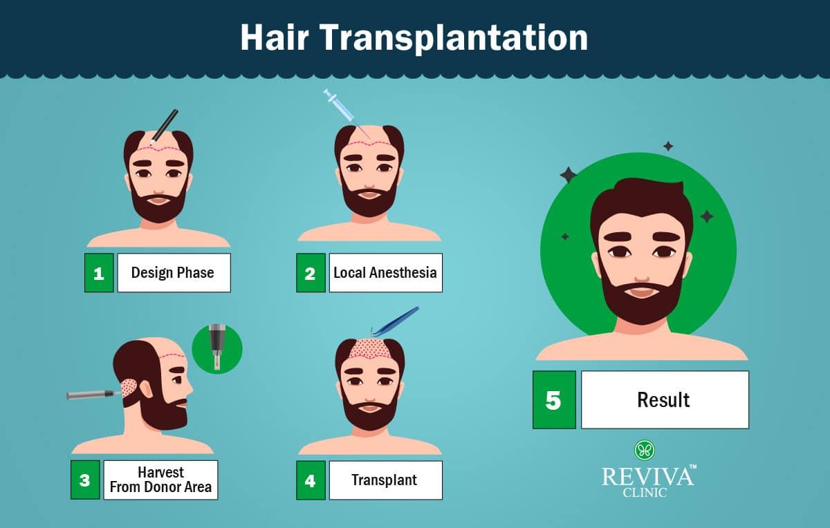 Fue Hair transplant prodecure -2020