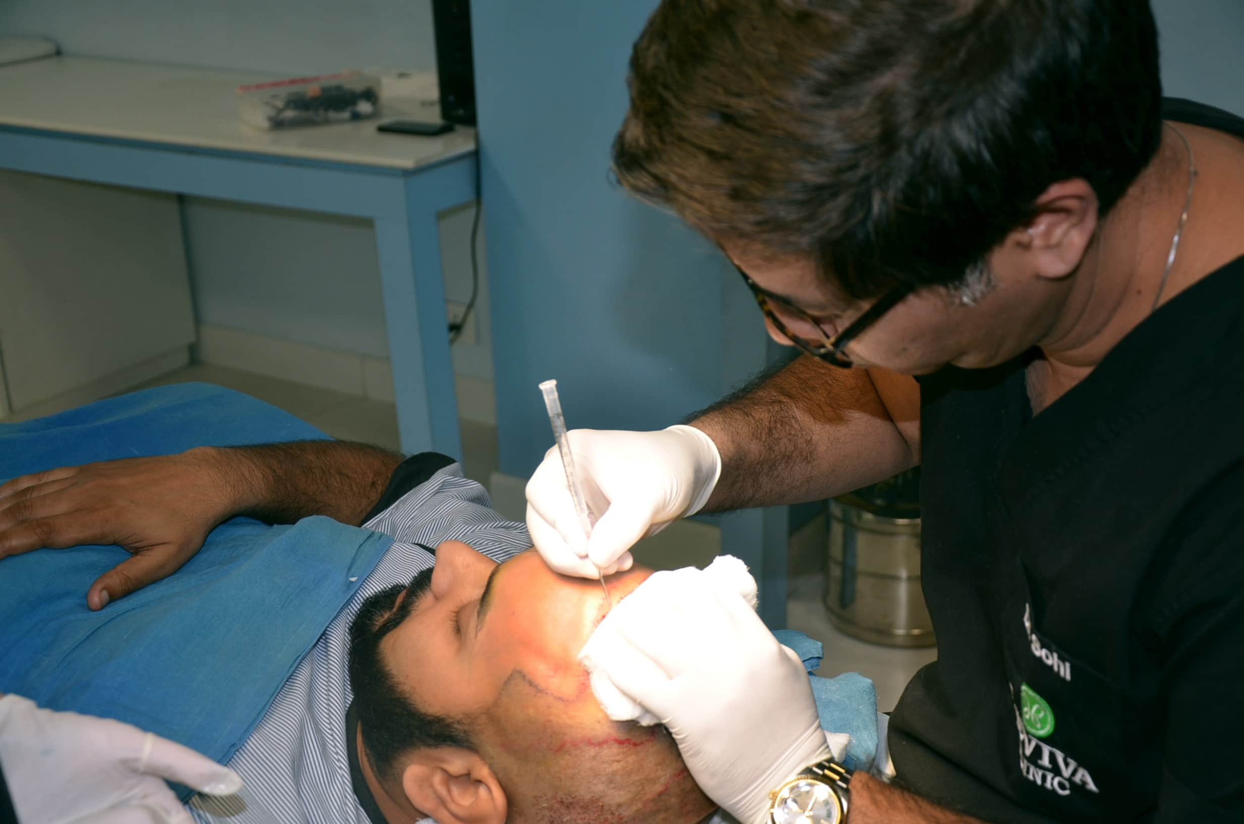 Things You Should Know about Hair transplant Cost in India